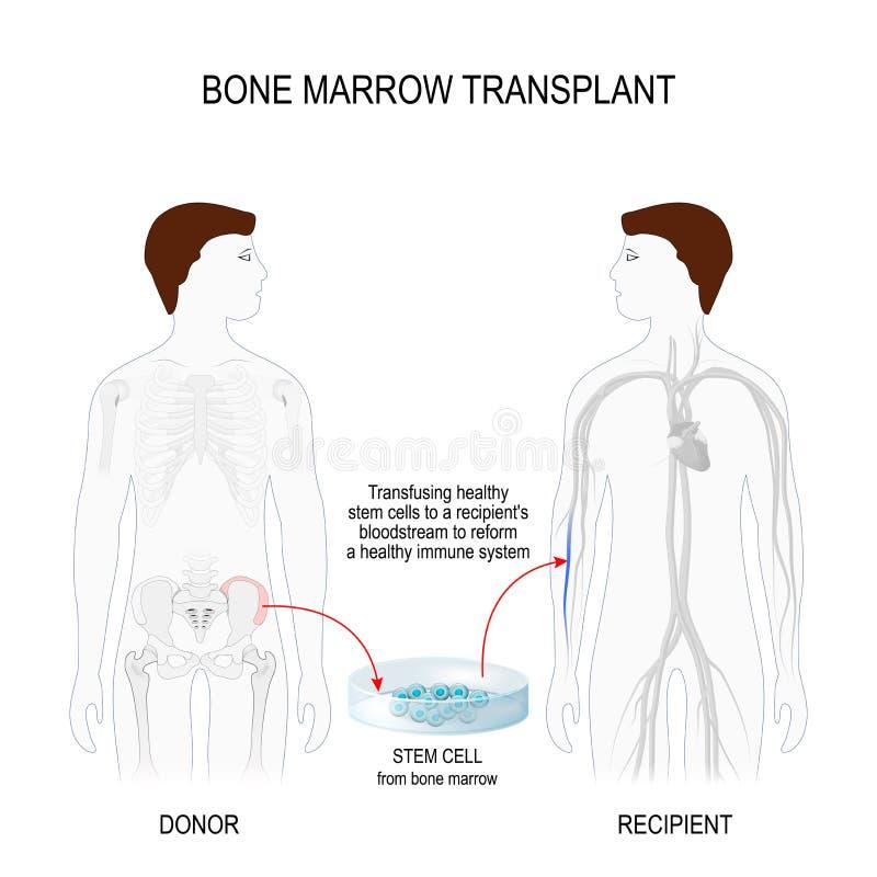Трансплантация костного мозга иллюстрация вектора