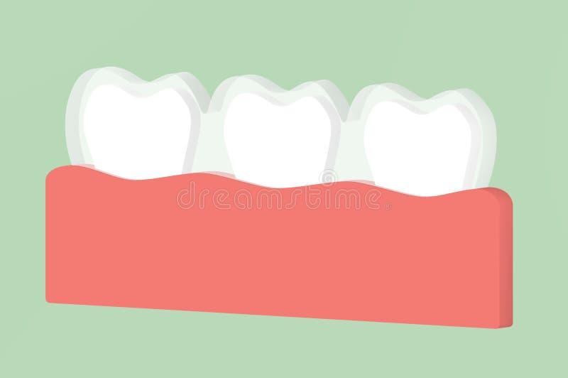 Тренер силикона носки зубов или незримые расчалки иллюстрация штока