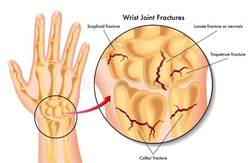 Трещиноватости соединения запястья руки бесплатная иллюстрация