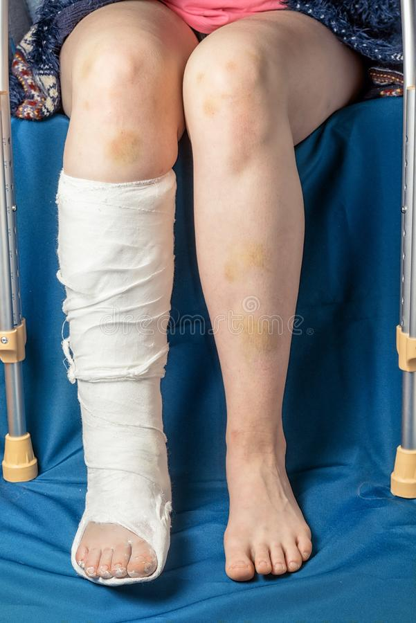 Трещиноватость ноги в гипсе и костылях стоковая фотография rf