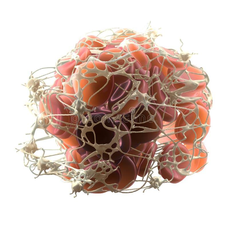 Тромб в кровотоке, сгусток крови с активированными бляшками и волокнина, медицински иллюстрация 3D стоковые изображения rf