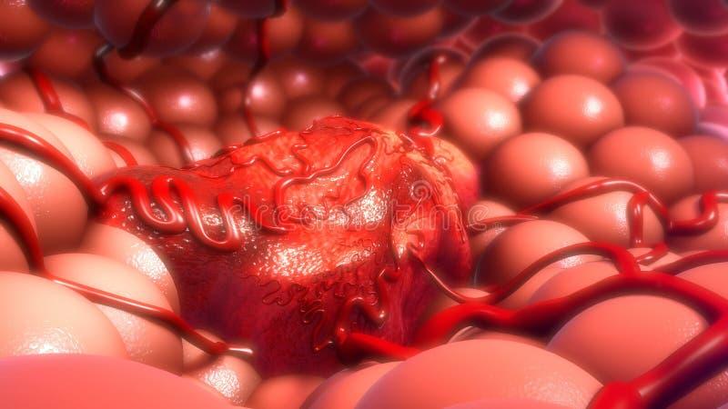 тумор стоковая фотография rf