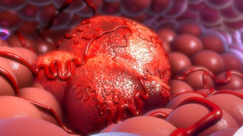 тумор стоковые изображения