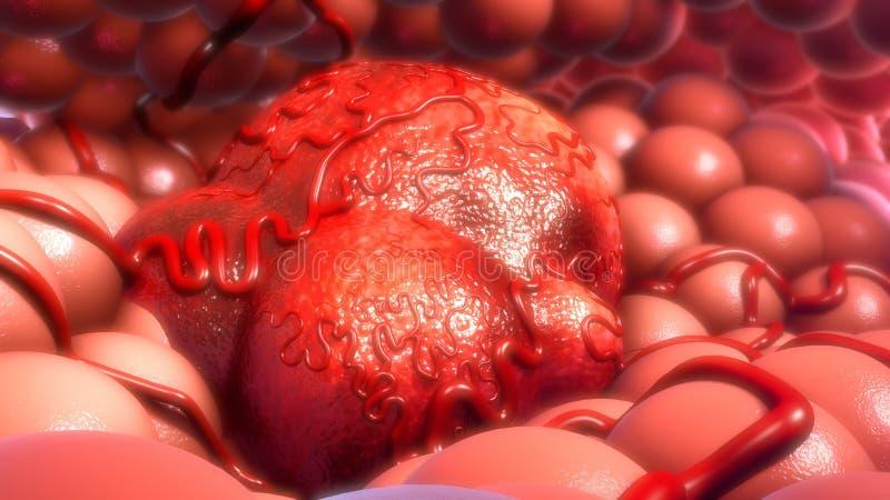 тумор стоковые фото