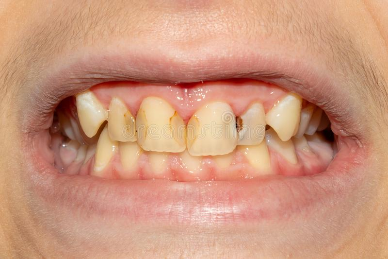 Тухлые зубы, костоеда и конец-вверх металлической пластинкы asocially пациент беды Концепция плохих гигиены и проблем здоровья стоковые изображения