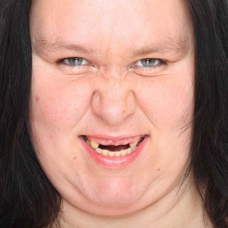 Тухлые зубы. стоковые фотографии rf