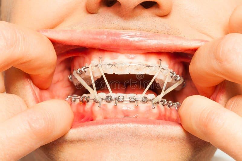 Тягостно нося ортодонтические расчалки и кольца стоковая фотография rf