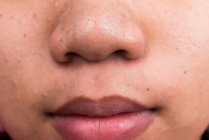 Угорь цыпк на носе и губах стоковое фото rf