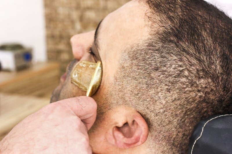 Удаление волос Сторона человека засахаривая epilation в Турции стоковая фотография rf