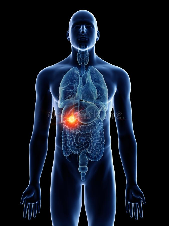 Укомплектовывает личным составом рак желчного пузыря бесплатная иллюстрация