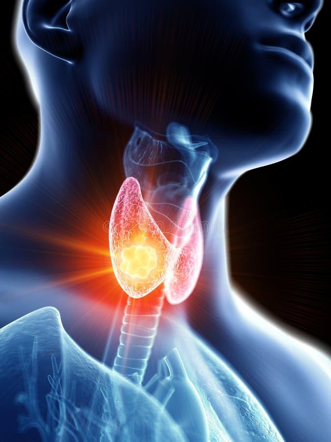 Укомплектовывает личным составом рак тироидной железы иллюстрация вектора