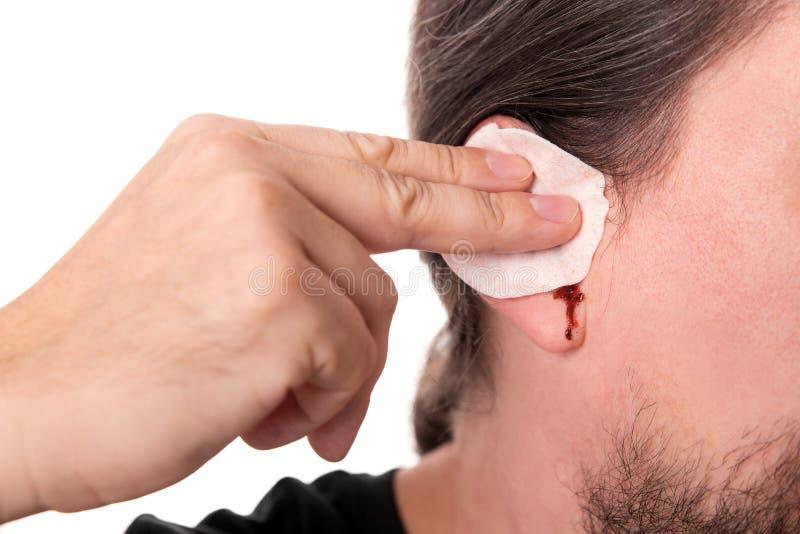 Укомплектуйте личным составом иметь кровотечение уха, изолированное на белизне, средства массовой информации otitis концепции стоковые фотографии rf