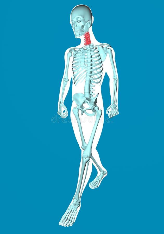 Укомплектуйте личным составом идти увиденный на рентгеновском снимке с болью в шеи иллюстрация штока