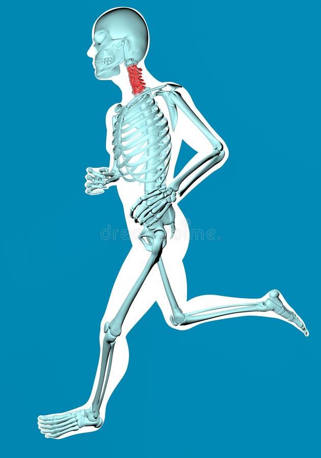 Укомплектуйте личным составом идти увиденный на рентгеновском снимке с болью в цервикальных позвонках иллюстрация вектора