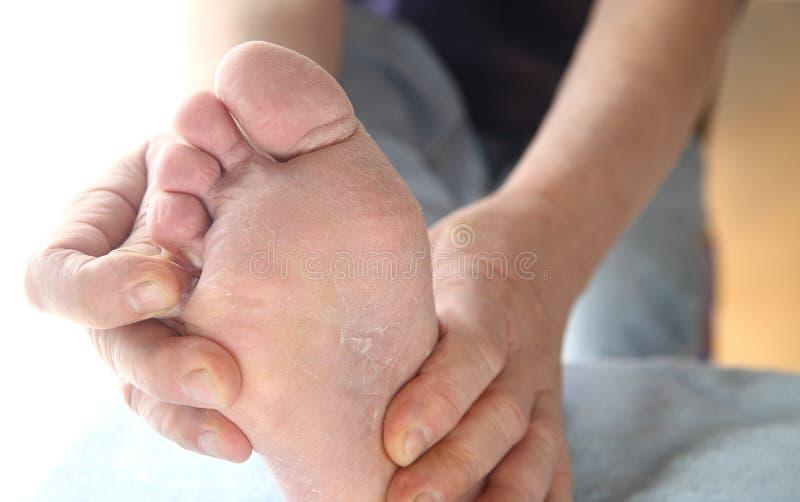 Укомплектуйте личным составом с кожей ноги спортсменов зудящей стоковые изображения rf