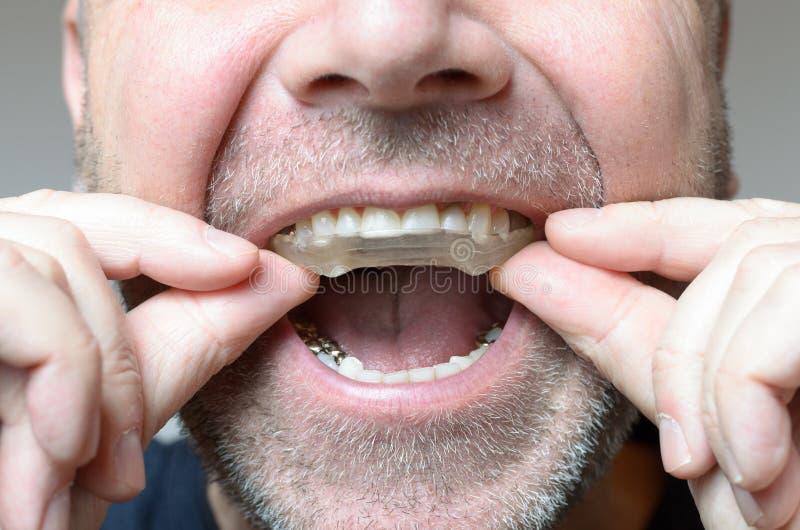 Укомплектуйте личным составом устанавливать плиту укуса в его рте стоковое фото