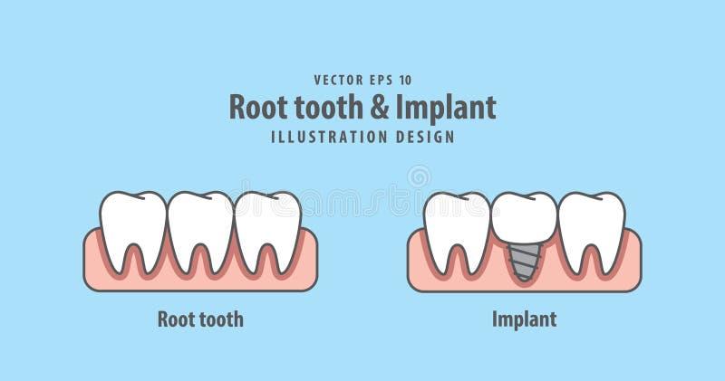 Укорените вектор зуба & иллюстрации Implant на голубой предпосылке вертеп иллюстрация вектора