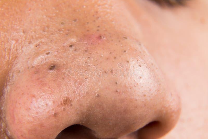 Уродские цыпки, угорь, zit и угорь на носе подростка стоковые фото