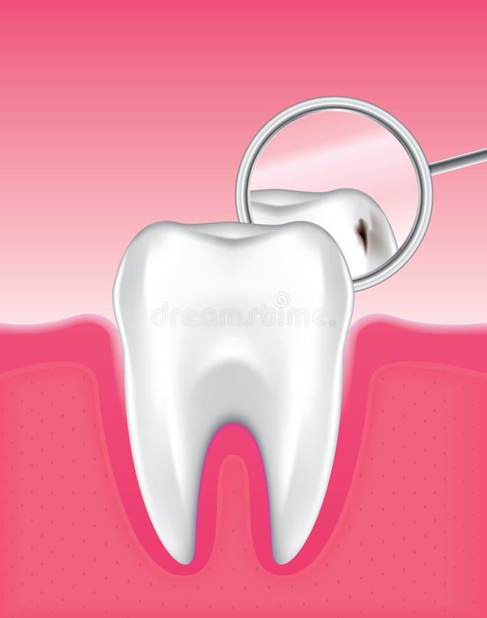 установленный зуб 6 иллюстрация вектора