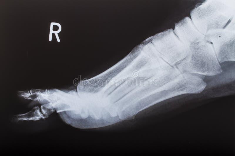 луч изображения ноги людской x стоковое фото