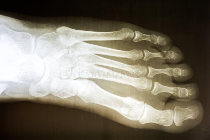 луч ноги людской x стоковые фото