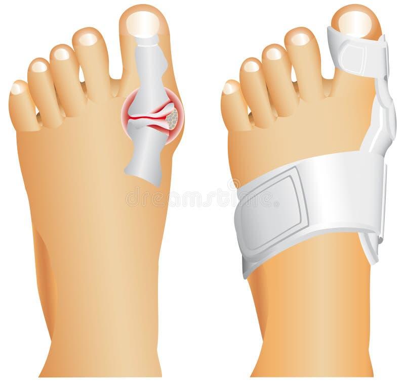 Ушиб большого пальца ноги иллюстрация вектора