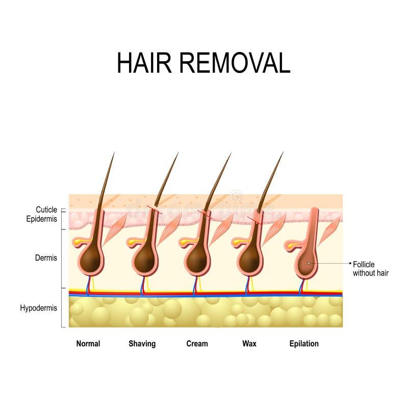 Удаление волос бесплатная иллюстрация