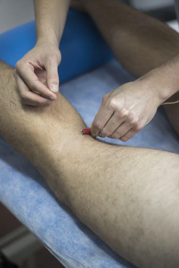 Физиотерапия EPI сухая needling стоковые изображения