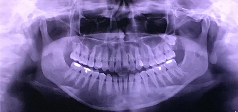 Фильм рентгеновского снимка стоковое фото rf