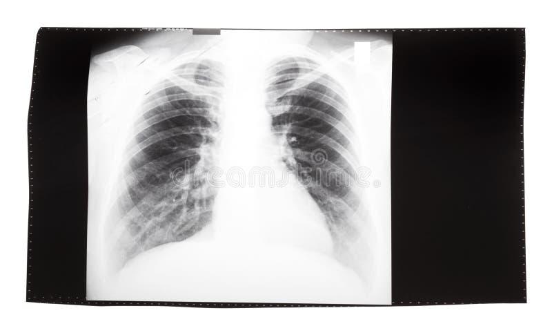 Фильм с изображением рентгеновского снимка человеческого торакса стоковое фото rf