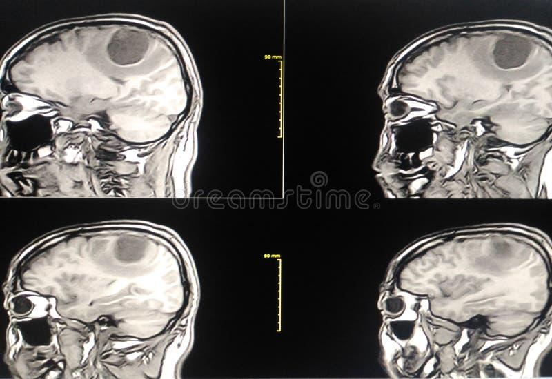 Фильм MRI bragg иллюстрация вектора
