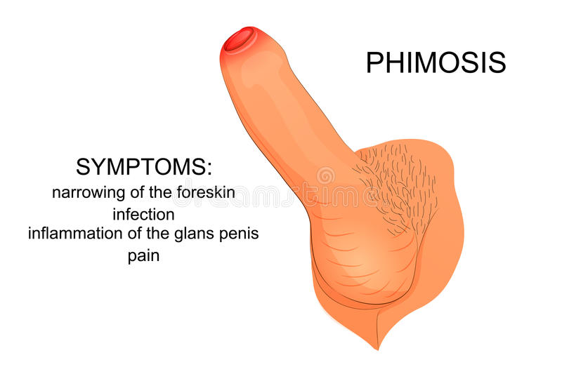 Home Remedy For Penile Stricture