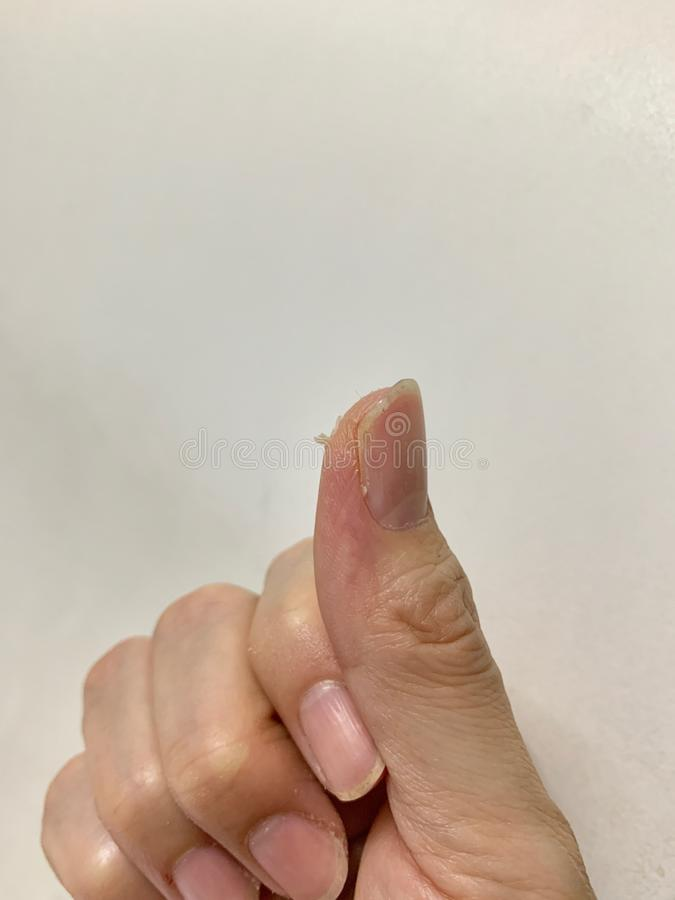 Фокус на корке кожи рук и пальцев, слезая эпидермис, грубая сухая кожа, воспалительные кожные заболевания на белой предпосылке стоковые фотографии rf