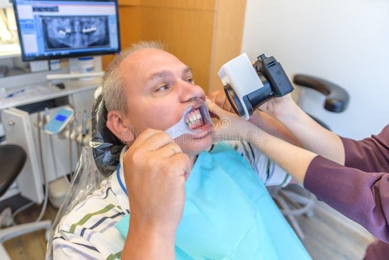 Фотографировать зубы в офисе ` s дантиста стоковая фотография rf