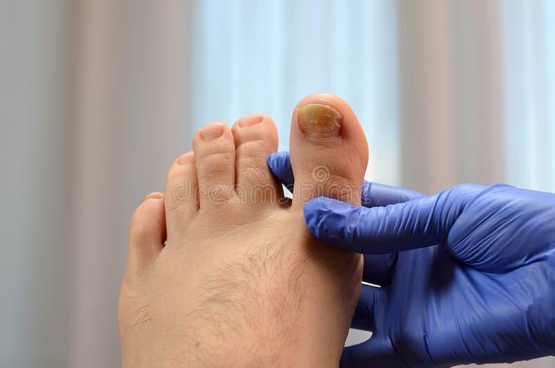 фото конца-вверх, показывает инфекцию ногтя пальца ноги и деформацию стоковое изображение