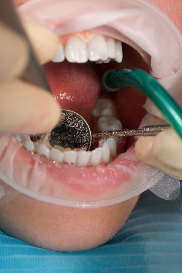 Фото макроса обработки зубов в офисе ` s дантиста раскройте рот с зубоврачебными аппаратурами стоковые изображения rf