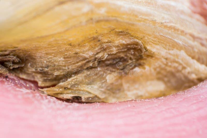 Фото макроса человеческого toenail с грибком стоковые фотографии rf
