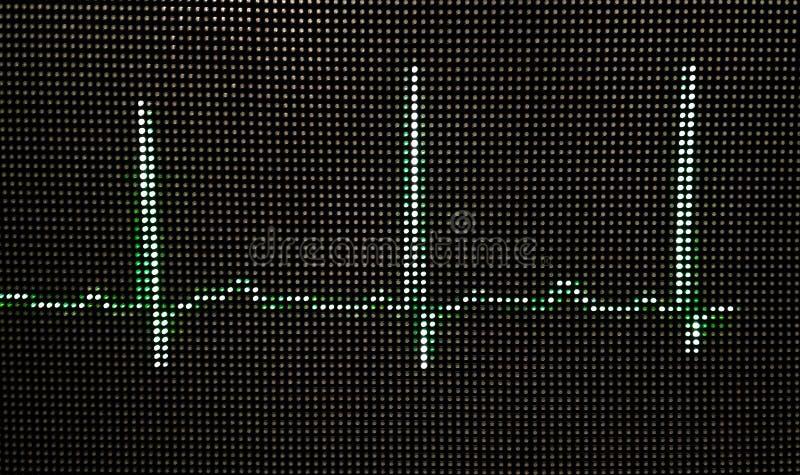 Фото нормальной человеческой электрокардиограммы на мониторе конца-вверх стоковые изображения