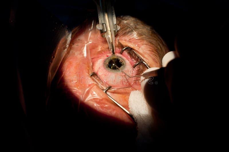Хирургия катаракты ophthalmologic стоковое изображение rf