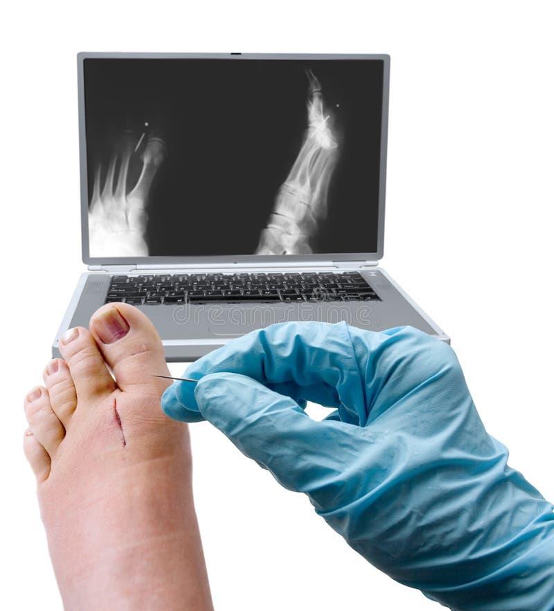 хирургия ноги стоковые фото