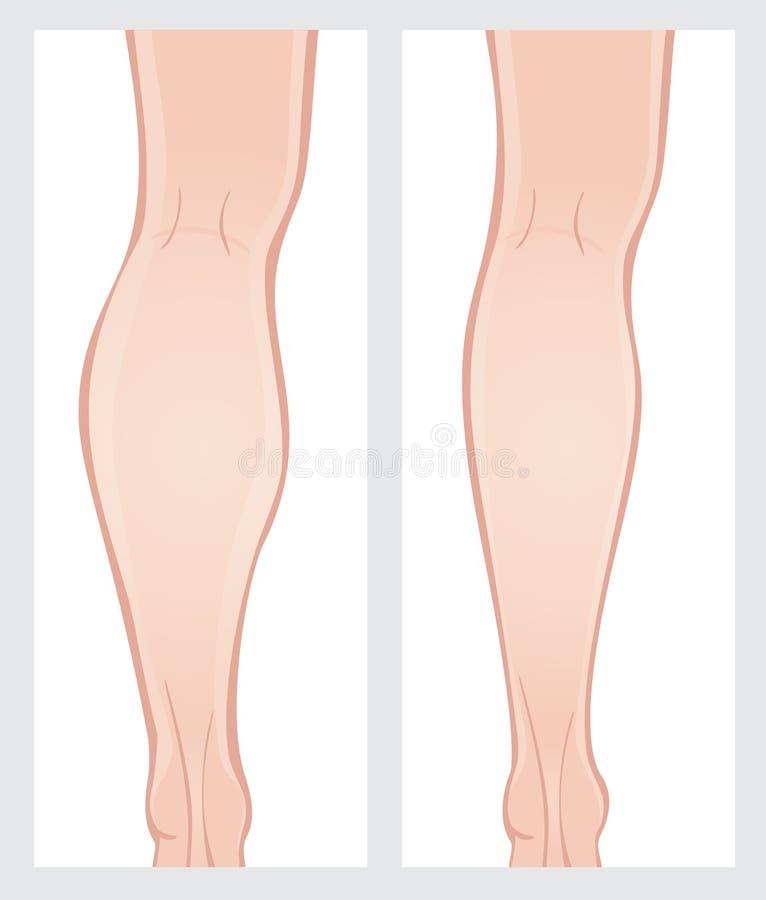 Хирургия уменьшения икры стоковое изображение rf