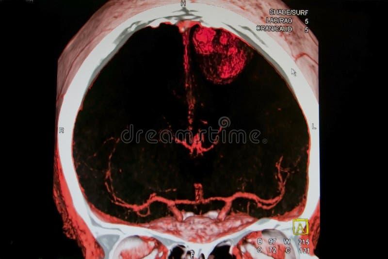 ход мозга стоковое изображение