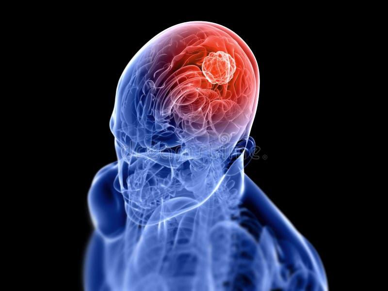 церебральный тумор иллюстрация штока