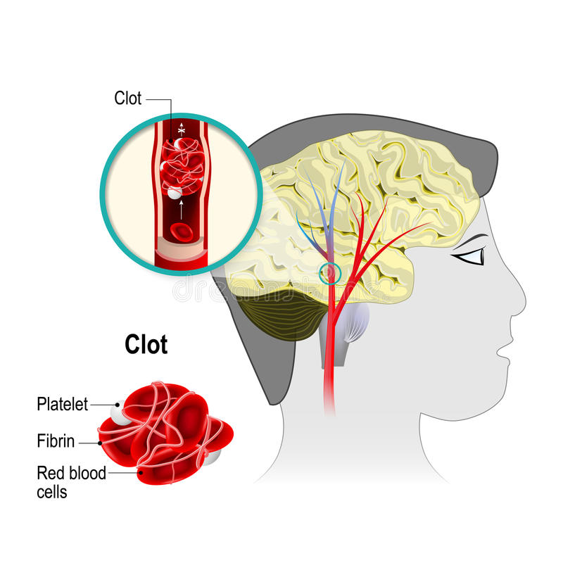 Церебральный инфаркт иллюстрация вектора