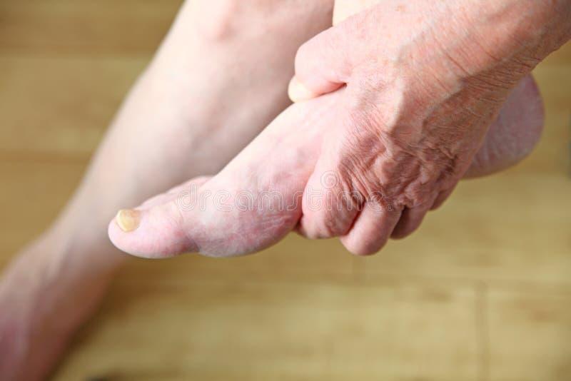 Человек держа его ногу стоковое фото rf