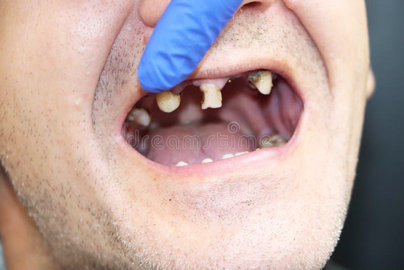 Человек имеет тухлые зубы, зубы упал вне, желтое и черное повреждение зубов Плохие зубы подготовляют, размывание, костоеда Доктор стоковая фотография