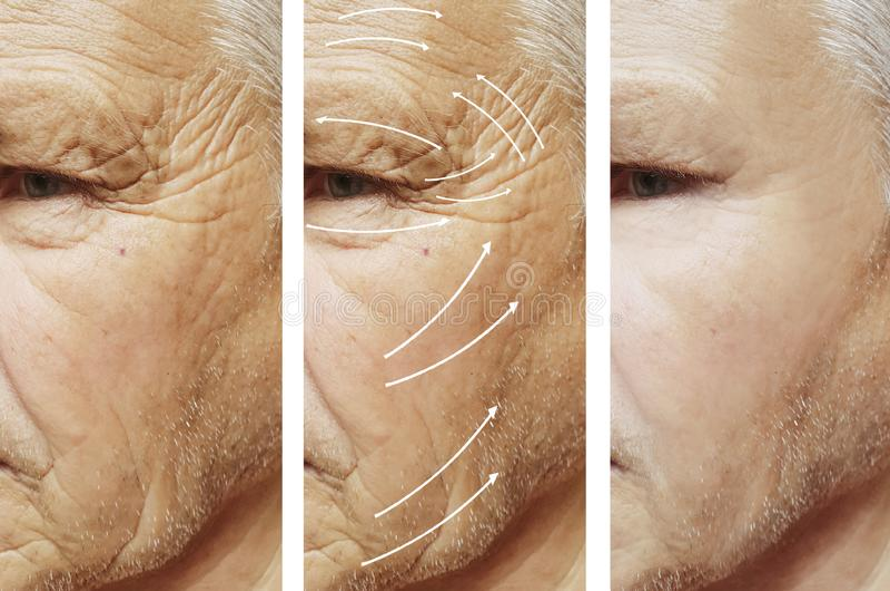 Человек, морщинки на стороне, пациенте разнице в косметологии коррекции перед и после процедурами стоковые фотографии rf