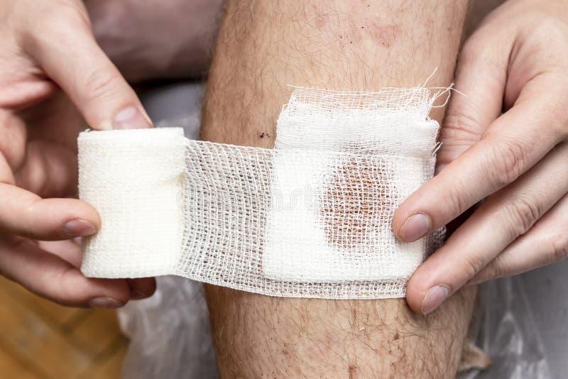 Человек перевязывая кровоточить рана на его ноге стоковые фотографии rf
