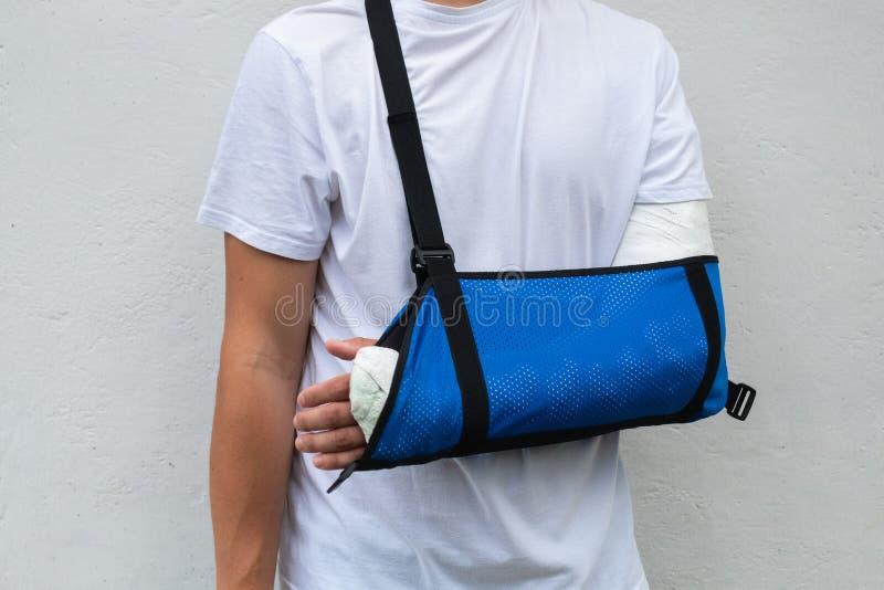 Человек со сломанной обмотанной рукой, мед. гипс и синий бинт стеклопластик, покрывающий запястье, руку, локоть после спорта стоковые изображения rf