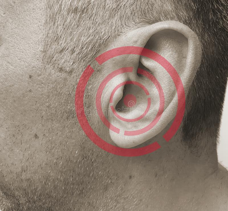 Человек ушибает его ухо симптом болезни заболеванием стоковое изображение rf